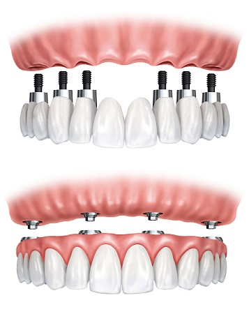 Implant full arch teeth glasgow