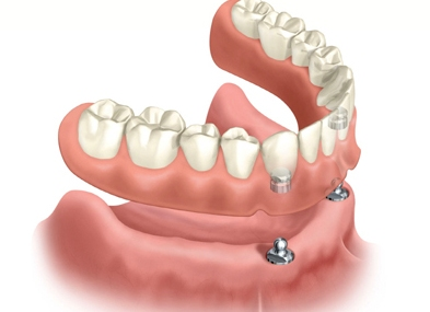 implant retained denture glasgow