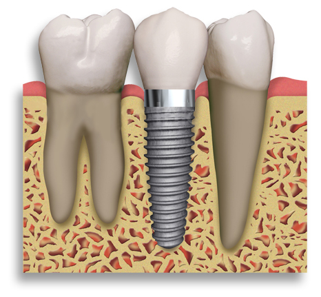 Glasgow Dental Implants