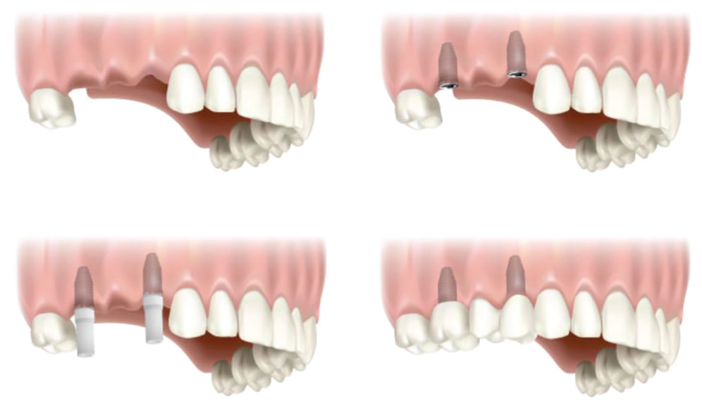 implant retained bridge